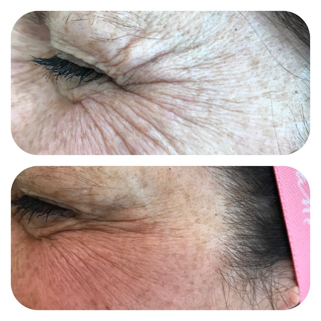 Crows feet treatment with botox-sm